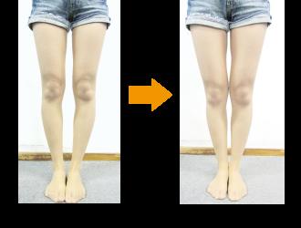 O脚矯正(施術前・施術後の変化)