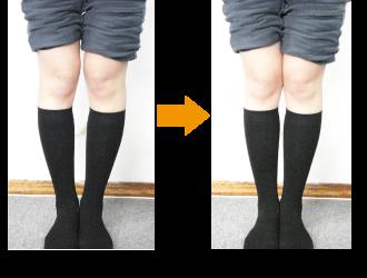 X脚矯正(施術前・施術後の変化)